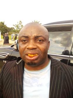 Le journaliste Sylver Ngodebo, directeur  de publication du Mensuel « Expression Direct » agressé par le garde du corps du SG du RDPC