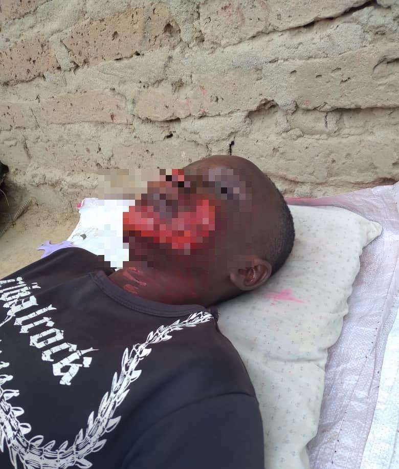 Tchad : il brûle le visage de son ami qui l'a dénoncé pour vol