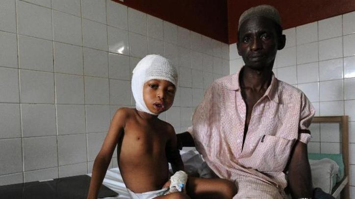 Un enfant blessé à la machette près de Boali, dans une attaque qui a fait au moins douze morts et dix blessés. Photo AFP