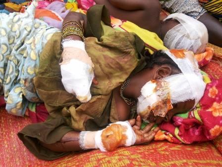 Une petite fille musulmane écorchée par les milices Anti-Balaka à Bangui. © Diaspora Media