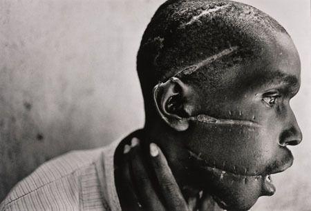Un rescapé du génocide rwandais. Photo : aregledujeu.org