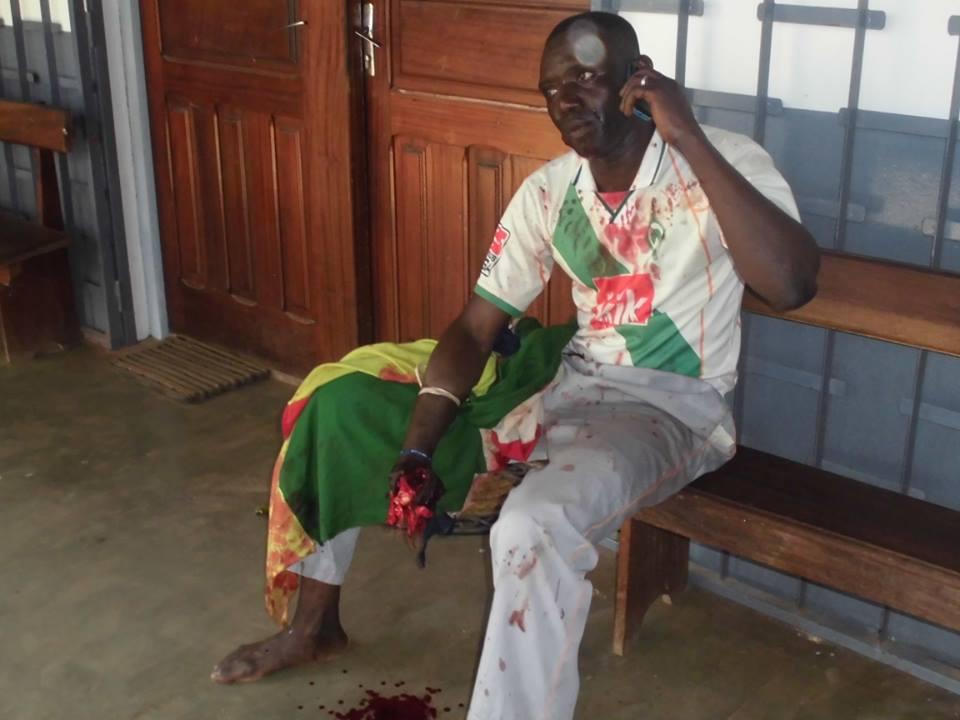 Une victime de la répression lors d'une manifestation pacifique le 29 août dernier. La victime a la main droite déchiqueté par une rafale de balles. Il tient le drapeau national. Crédit photo : Matosinhos Btp Sarl