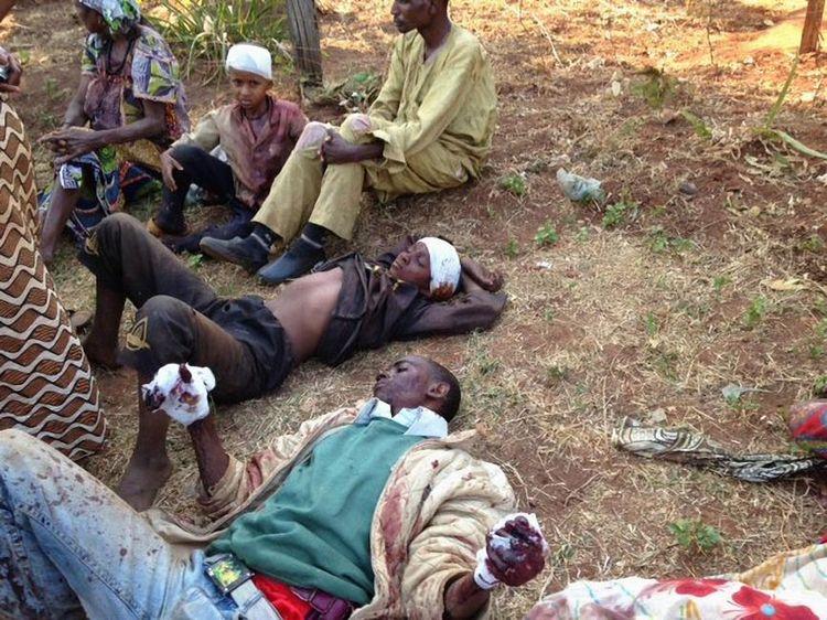 Des musulmans blessés dans le village de Boali, à 95km au nord de Bangui, en Centrafrique. (Photo Maria Malagardis)
