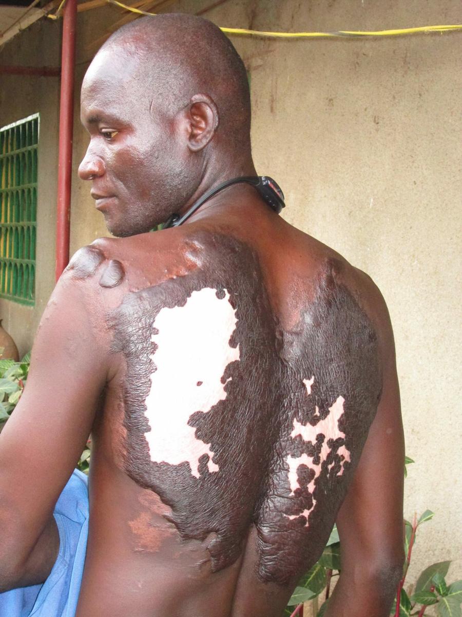 L'étonnant récit d'un jeune tchadien rescapé d'une attaque de Boko Haram