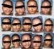 Tchad : 46 victimes de la malformation bec-de-lèvre opérées gratuitement