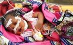 Tchad : Un nouveau né abandonné par sa mère dans un dépôt d'ordures à Am-Timan
