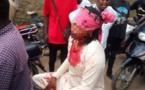N'Djamena : une femme frappée avec la crosse d'un pistolet dans une auberge