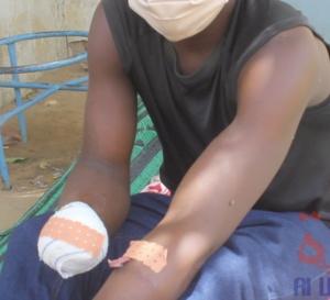 Tchad : il sauve des enfants et perd sa main dans l'explosion d'une grenade, Augustin appelle à l'aide