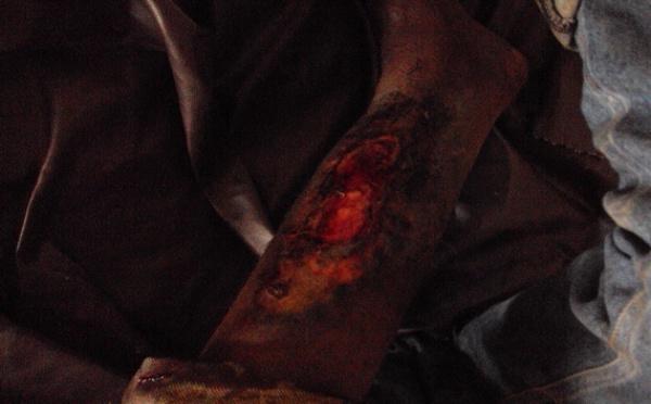 Exclusivité : Répression de la manifestation de l'opposition en Guinée