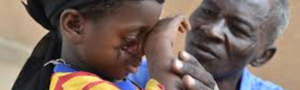 Le Noma :  Une maladie qui ne devrait plus exister